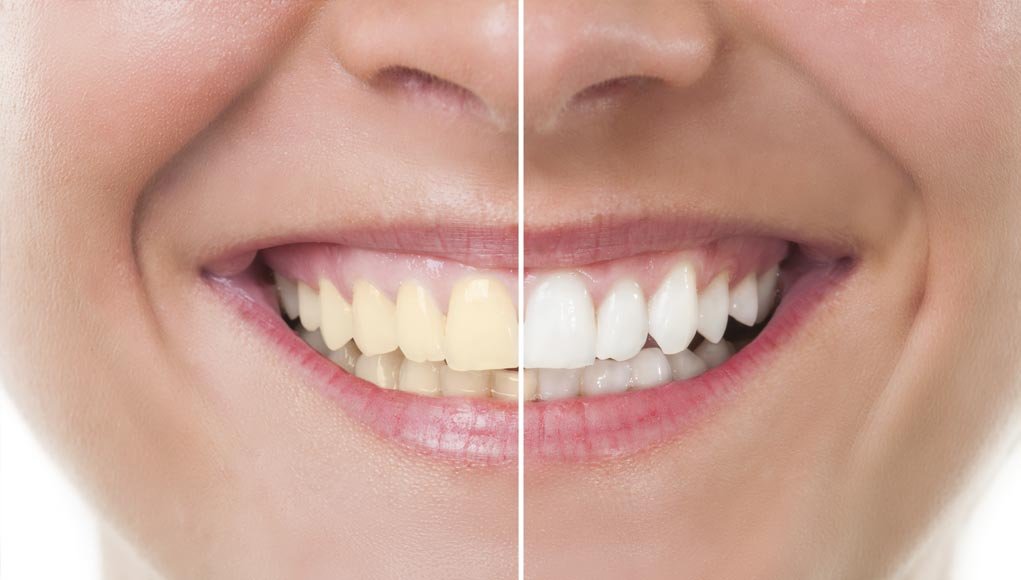 Best and Worst Teeth Whitening Products...(Reviewed)