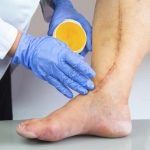 Seven Warning Signs of Clogged Arteries5 Signs You Have Clogged Arteries