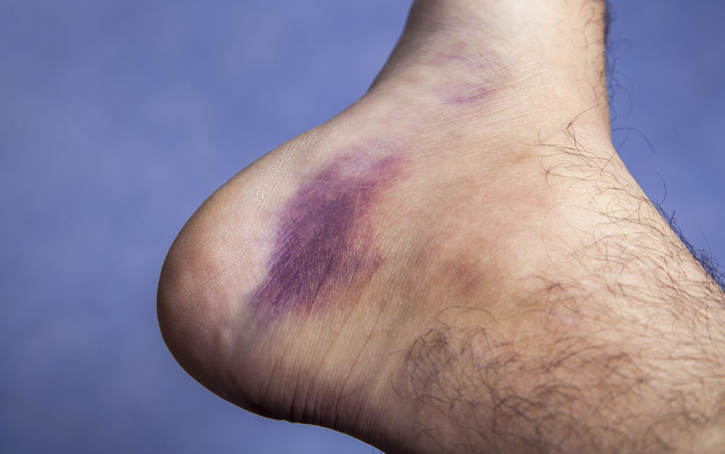 Natural Home Remedies for Bruises