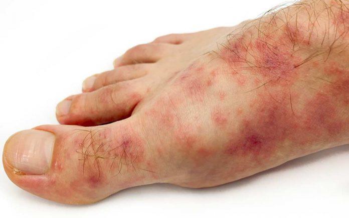 Beware of These New Coronavirus Symptoms